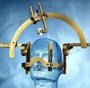 脑电定位仪