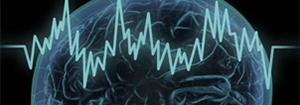 哪些原因会导致癫痫发作